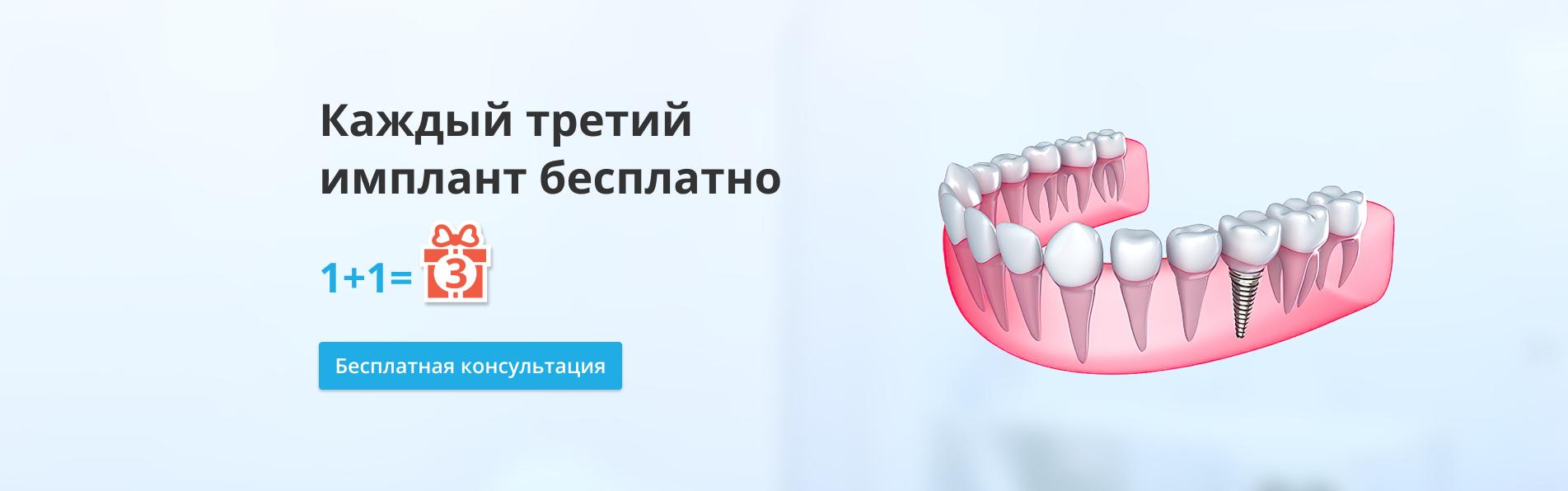 имплантация в стоматологии Доктор Сен