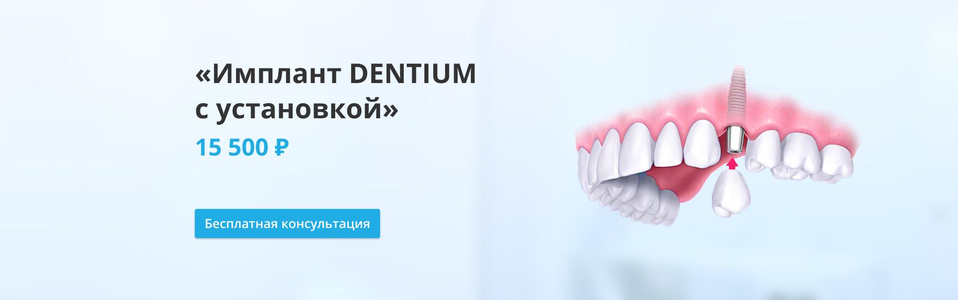Имплант Дентиум с установкой